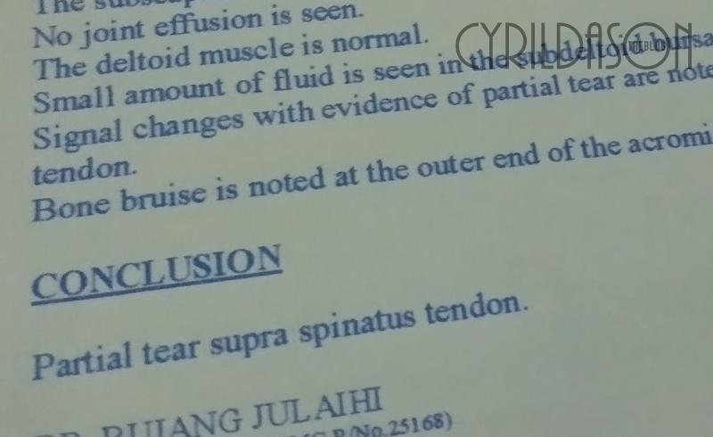 Partial tendon tear