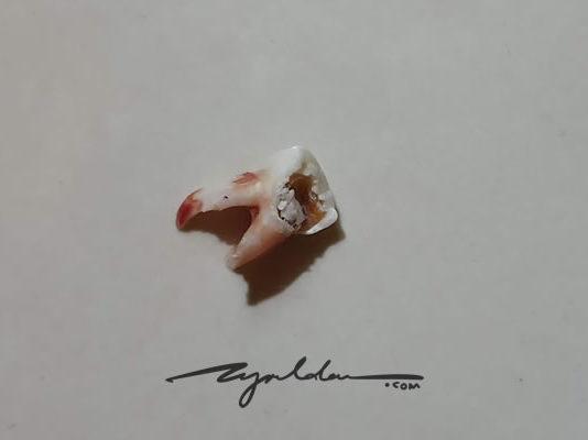 extraction of a preschooler tooth